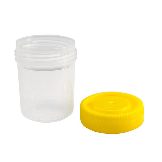 CELLSTOR Minta tároló edény fedéllel 60 ml, Sárga