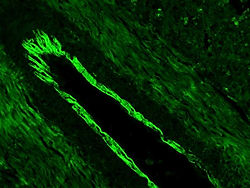 Actin-alpha-Smooth Muscle_1A4.jpg