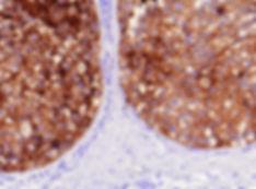 emlőrák, c-erbB-2 (klón: SP3)