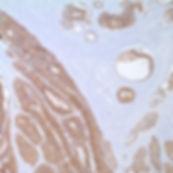 Adenocarcinoma, EpCAM (MOC31)