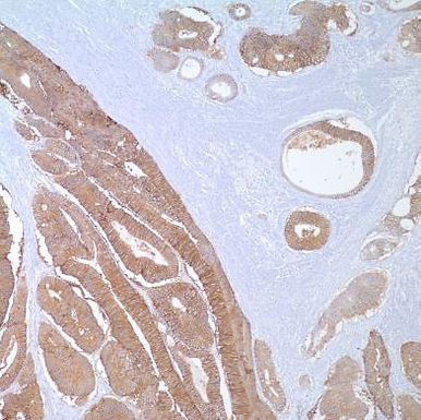 Epithelial Cell Adhesion Molecule (EpCAM)