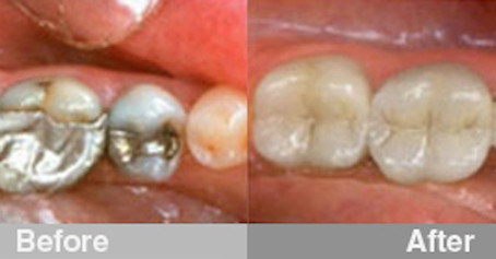 Composite Fillings Can Make A  Huge Difference!