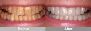 Dental Crowns Can Restore  & Beautify Teeth