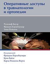 Оперативные доступыв травматологии и ортопедии