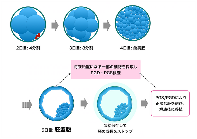 胚の生育_着床前診断