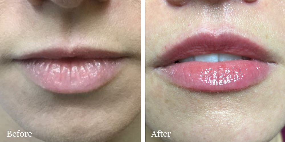 Lip Lift - alternative to fillers- Jupiter FL