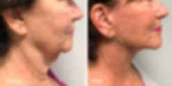 Facelift and neck lift Jupiter florida.p