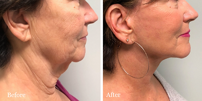 Click to view our Facelift and Neck Lift Gallery
