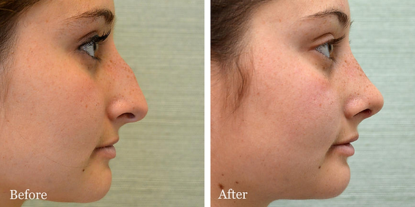 Female rhinoplasty (nose job) before and after in Jupiter by Dr. Azzi