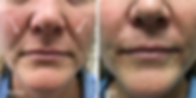 Fillers in melolabia and nasolabial folds | Dr. Azzi | Jupiter | Palm Beach
