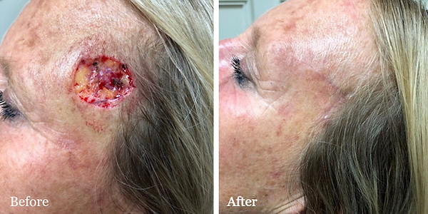 Before and After Mohs Reconstruction on female patient by Dr. Azzi in Stuart Florida