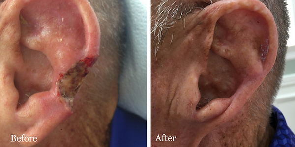 Before and After Mohs Reconstruction on ear of male patient by Dr. Azzi in Jupiter Florida