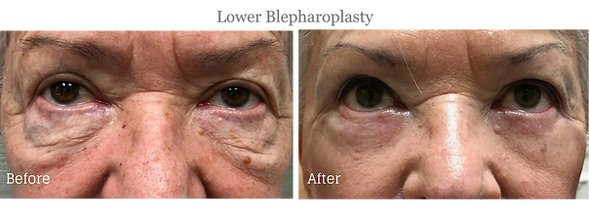 Before and After Lower Blepharoplasty (Eyelid Lift) on female patient by Dr. Jean-Paul Azzi in Jupiter Florida