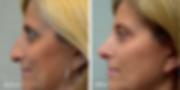 Female rhinoplasty by Dr. Azzi in Jupiter Florida