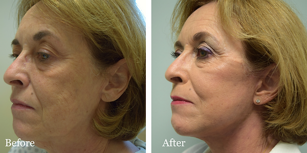 Facelift by Dr. Azzi