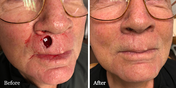 Mohs skin cancer surgery Dr. Azzi Jupiter before and after