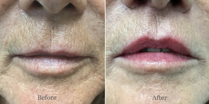 Lip Lift Palm Beach Florida