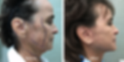Revision Facelift by Dr. Jean-Paul Azzi