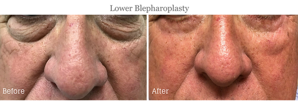 Before and After Lower Blepharoplasty (Eyelid Lift) on male patient by Dr. Jean-Paul Azzi in Jupiter Florida