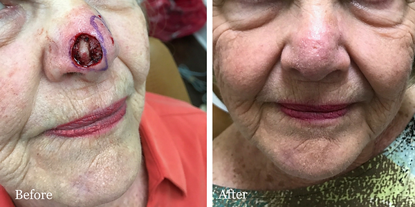 Before and After Mohs Reconstruction on female patient by Dr. Azzi in Palm City Florida