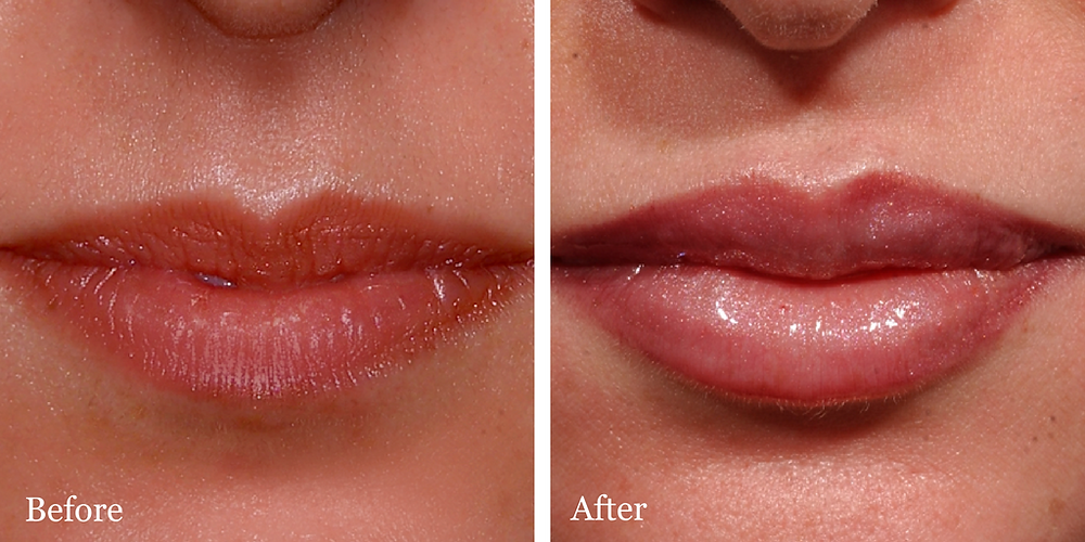 One syringe of Juvederm in lips