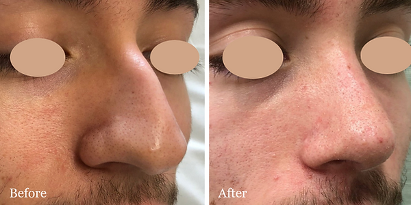 Male rhinoplasty before and after in Palm Beach by Dr. Azzi