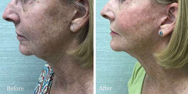 Before and After Revision Facelift on female patient by Dr. Azzi in Jupiter