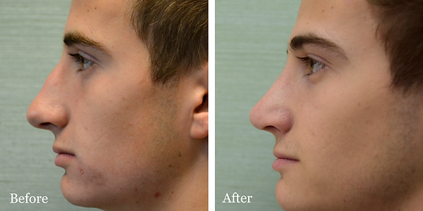 Male rhinoplasty (nose job) before and after in Jupiter by Dr. Azzi