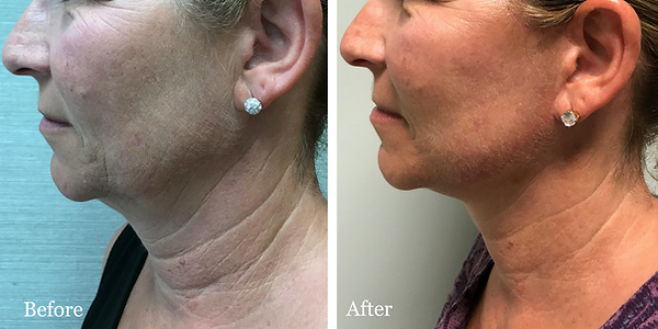 Mini Facelift on female patient by Dr. Jean-Paul Azzi in Jupiter