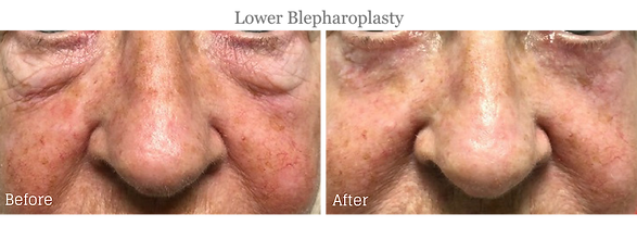 Before and After Lower Blepharoplasty (Eyelid Lift) on female patient by Dr. Jean-Paul Azzi in Palm Beach Florida