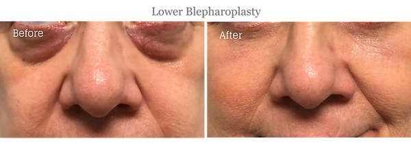 blepharoplasty jupiter palm beach.png