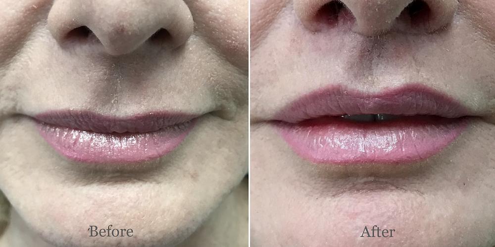 Lip Lift Surgeon Florida