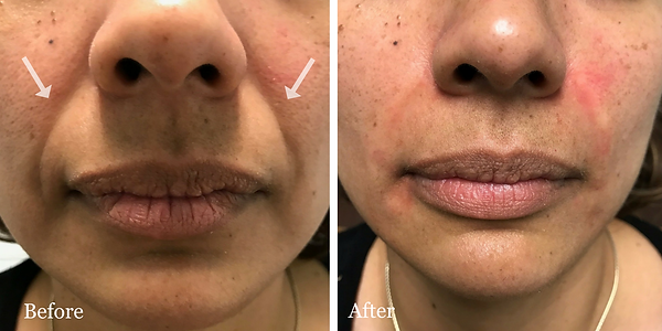 Fillers in nasolabial folds | Dr. Azzi | Jupiter | Palm Beach