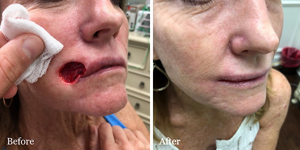 Before and After Mohs Reconstruction on female patient by Dr. Azzi in Jupiter Florida