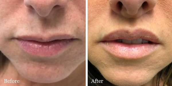 Lip Lift before and after on female patient in Stuart by Dr. Azzi