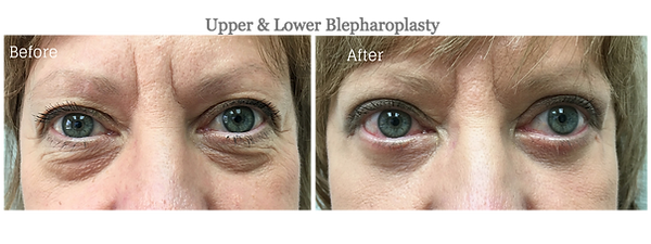 Upper and Lower Blepharoplasty (Eyelid Lift) by Dr. Jean-Paul Azzi | Jupiter | Palm Beach