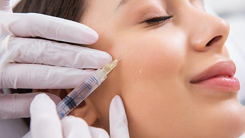female patient getting cheek fillers in jupiter