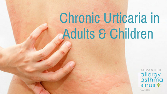 Chronic Urticaria in Adults & Children