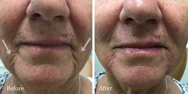 Radiesse filler in melolabial folds | Dr. Azzi | Jupiter | Palm Beach