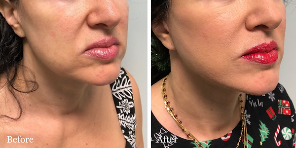 Before and After Revision Facelift on female patient by Dr. Azzi in Stuart