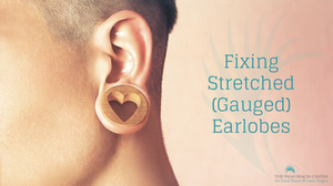 Fixing Stretched (Gauged) Earlobes