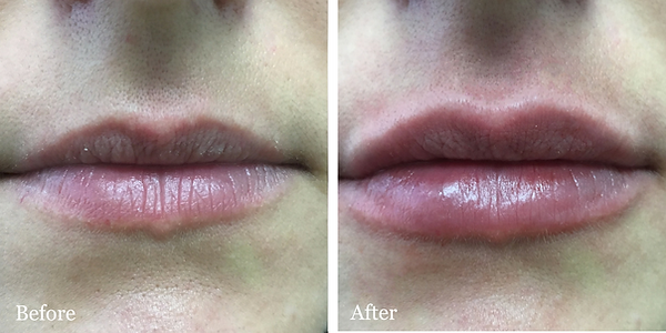 Lip fillers by Dr. Azzi | Belotero | Jupiter | Palm Beach