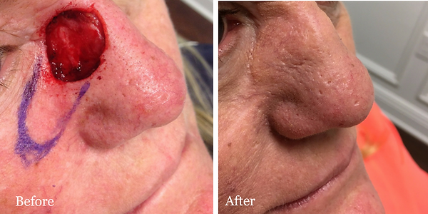 Before and After Mohs Reconstruction by Dr. Azzi in Jupiter Florida