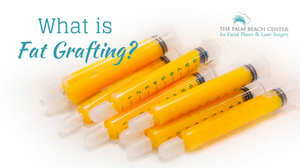 What is Fat Grafting?