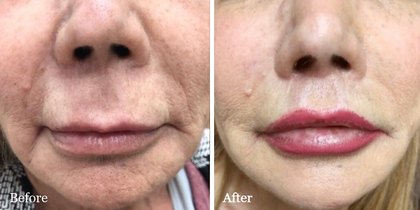 Lip Lift before and after on female patient in Jupiter by Dr. Azzi