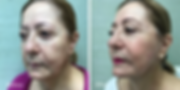 Facelift by Dr. Jean-Paul Azzi