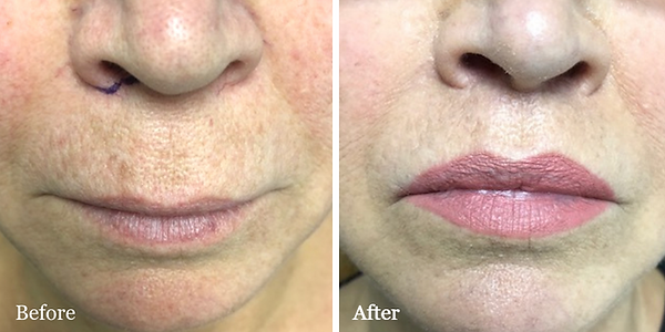 Lip Lift before and after on female patient in Palm Beach by Dr. Azzi