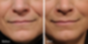 Radiesse and Juvederm fillers in nasolabial folds or laugh lines | Dr. Azzi | Jupiter | Palm Beach