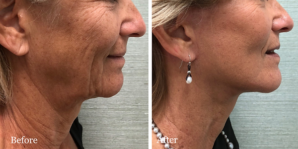 Before and After Facelift & Necklift on female patient by Dr. Azzi in Jupiter, Florida