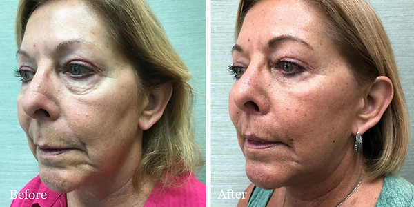 Before and After Revision Facelift on female patient by Dr. Azzi in Palm Beach